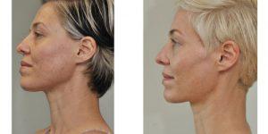 EDS Rejuvenation Skin Needling at Simply Skin Oldham