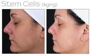 Dermaquest Treatments at Simply Skin Oldham