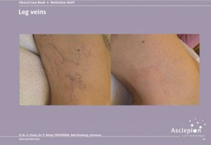 Broken Vein Removal at Simply Skin Laser Clinic Oldham