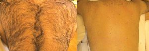 Simply Skin Oldham, Laser Hair Removal Clinic