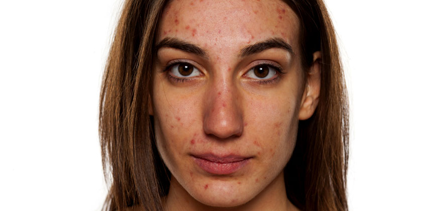Acne Treatments at Simply Skin Laser Clinic Oldham