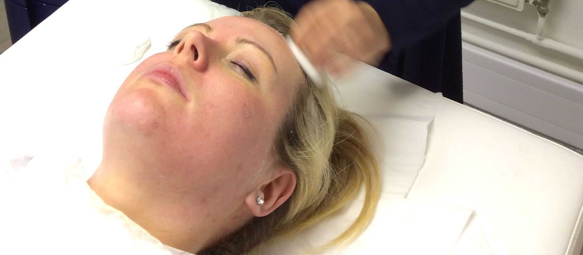 Salicyclic Peels at Simply Skin Oldham