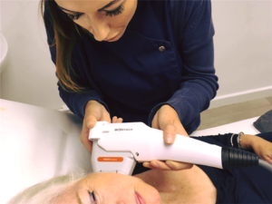 Hifu Skin Tightening at Simply Skin Oldham
