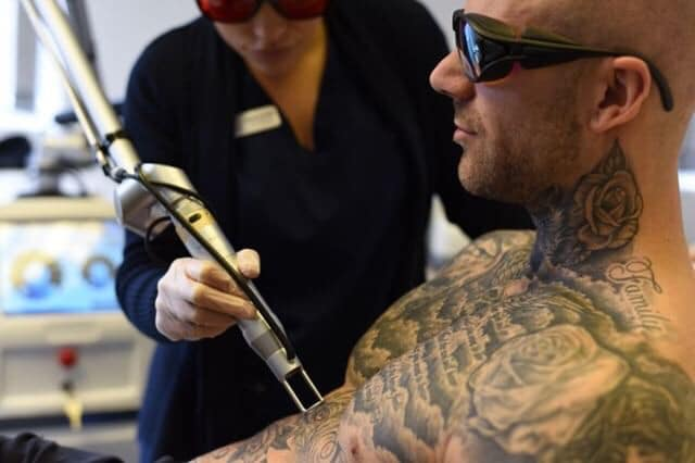 Laser Tattoo Removal at Simply Skin Oldham