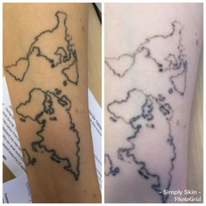Pico Laser Tattoo Removal at Simply Skin Oldham
